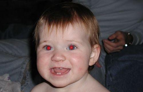 Fotoğraf Çekerken Gözlerimiz Neden Kırmızı Çıkar